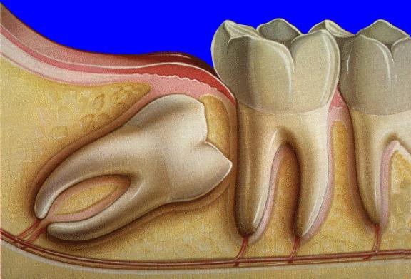как выровнять зубы после удаления зубов мужрости дом Серышеве