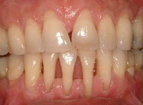 32 зуба ru: