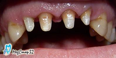 Сколько стоит обточить зубы для коронок
